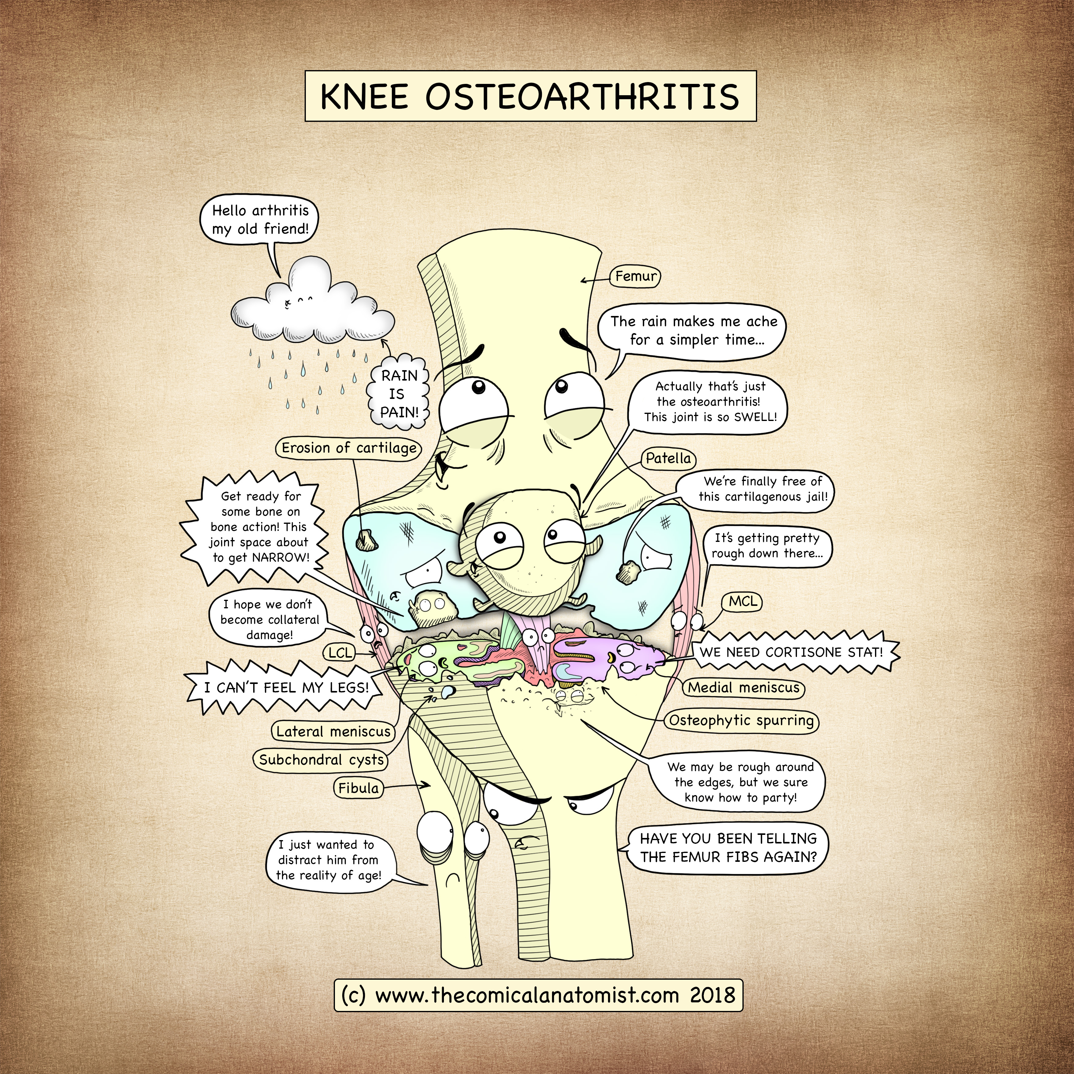 Knee Joint Osteoarthritis